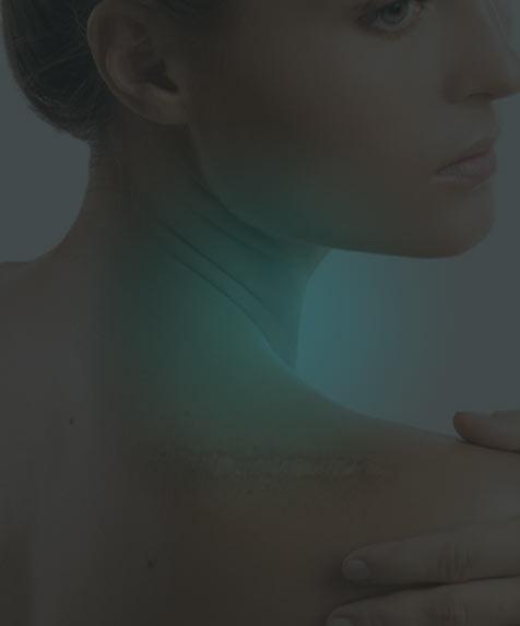 traitement cicatrices d'acnés