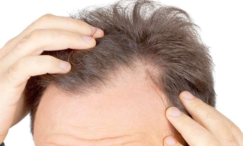 greffe cheveux par FUT