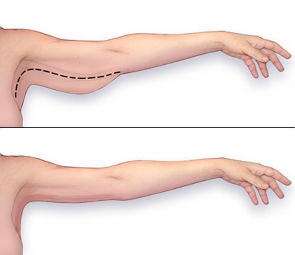 chirurgie-bras-tunisie