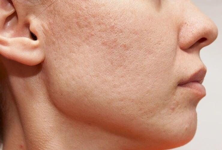 peau acnéique et sensible
