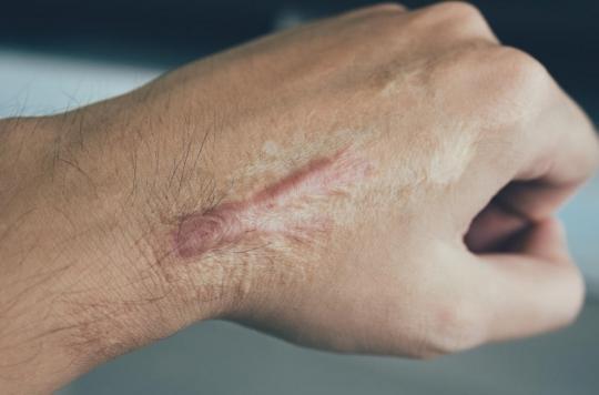 cicatrice peau