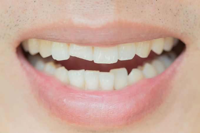 comment retrouver le sourire