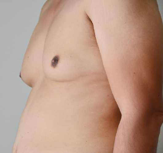 causes gynécomastie
