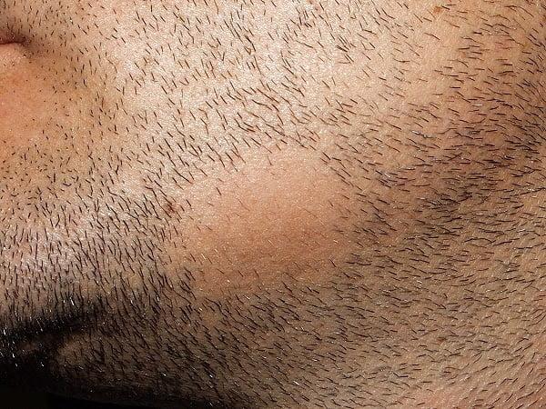 pilosité barbe