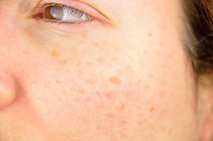 pigmentation de la peau