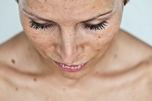 tache d'hyperpigmentation